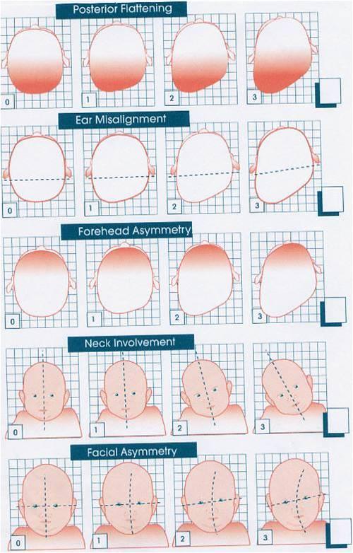 modificazioni del cranio